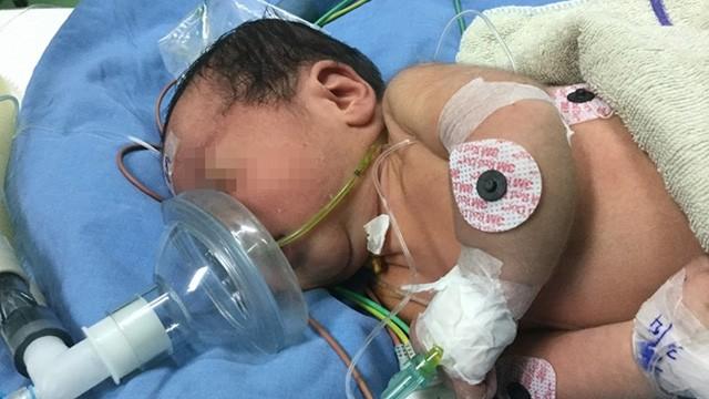 Hỗ trợ bênh viện sản nhi Đà Nẵng mổ thành công cho trẻ sơ sinh bị teo thực quản bẩm sinh