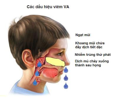 Cách nhận biết bệnh VA ở trẻ em
